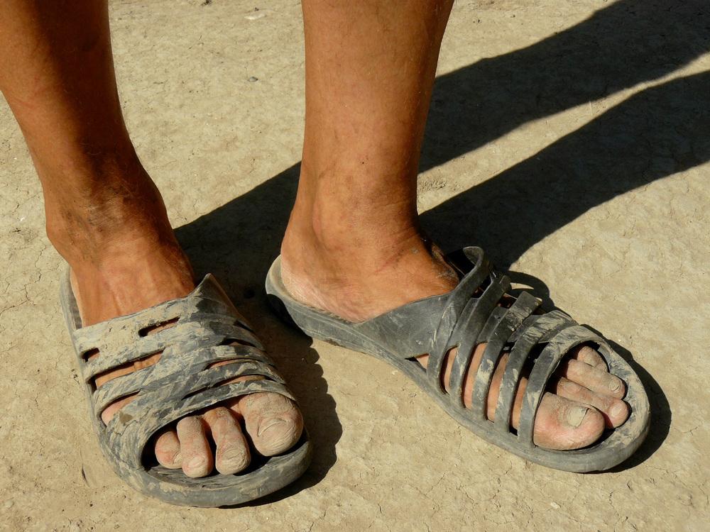 В шлепанцах ноги грязные — 3